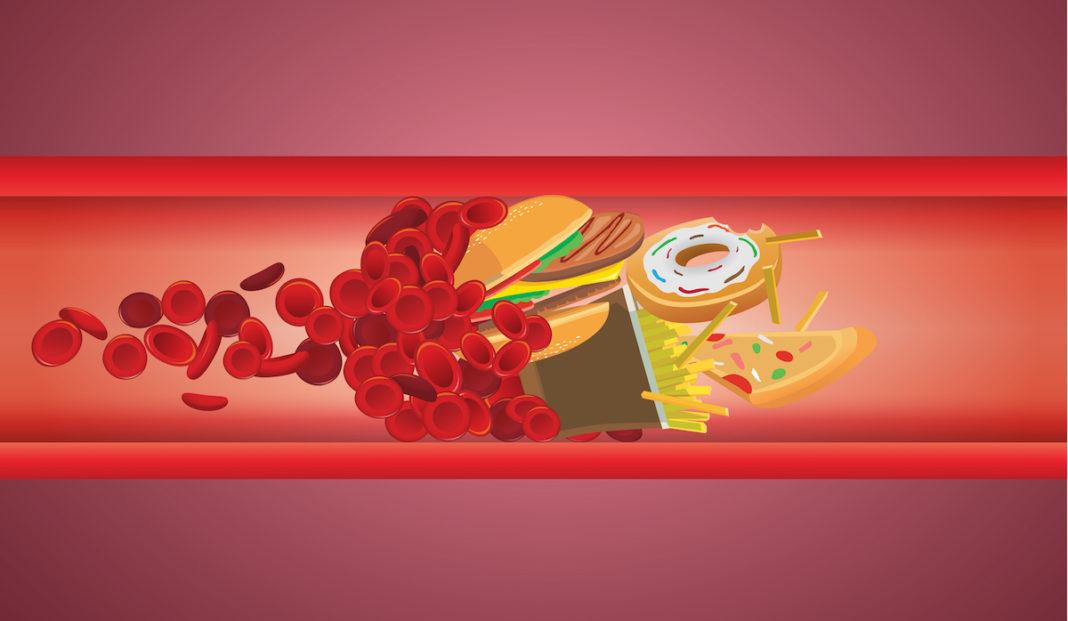 (VIDEO) Cetăţenii cu vârsta de peste 40 ani îşi pot măsura gratis colesterolul şi zahărul în sânge!