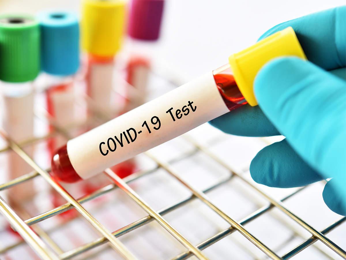 1 215 cazuri de Coronavirus, înregistrate în ultimele 24 ore